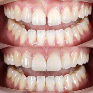 cosmetic dentistry dental bonding