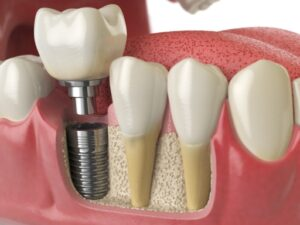 cosmetic dentistry dental implant
