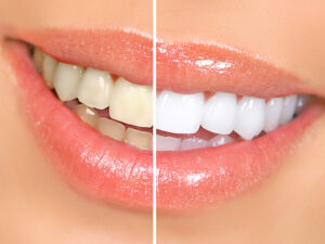 cosmetic dentistry teeh whitening